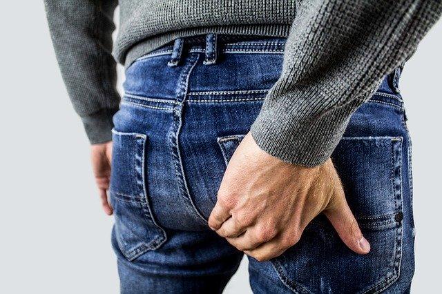 Thrombosed External Internal Hemorrhoid Prolapsed